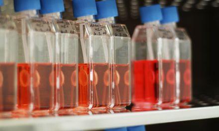 Dresdner Universitätsklinikum verzeichnet trotz Pandemie einen Zuwachs an Gewebespenden