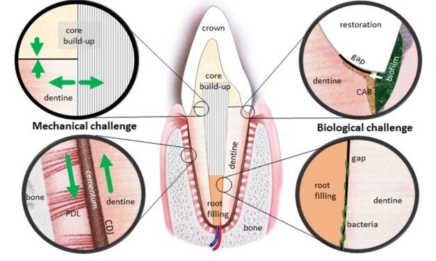 Grundlage für robustere dentale Biomaterialien