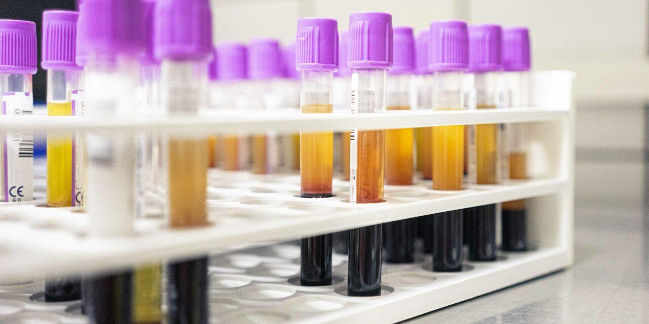 Erste Ergebnisse der Magdeburger Antikörperstudie zu COVID-19: Von einer breiten Immunität noch weit entfernt